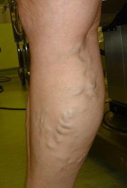 Tratamentul varicelor în N. Tagil